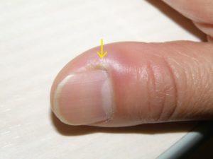 爪の横 押すと痛い